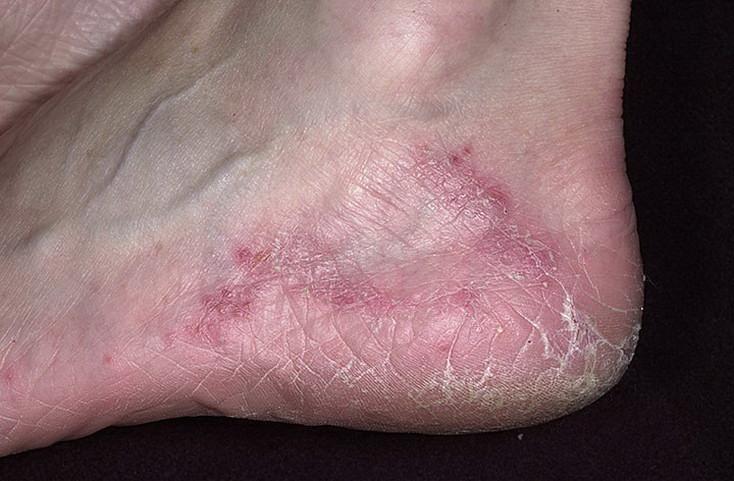 лечение народными средствами грибок ногтей